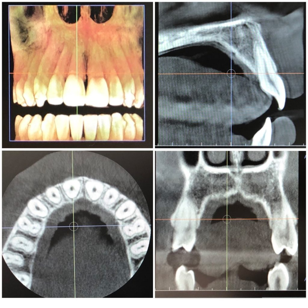 3D image CBCT Cone Beam