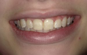 AFTER WHITE SPOT TREATMENT